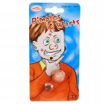 Pimples and Warts Prank